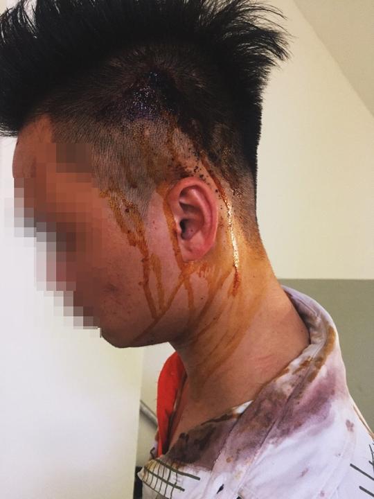Nguyễn Xuân T. (27 tuổi) bị tét đầu