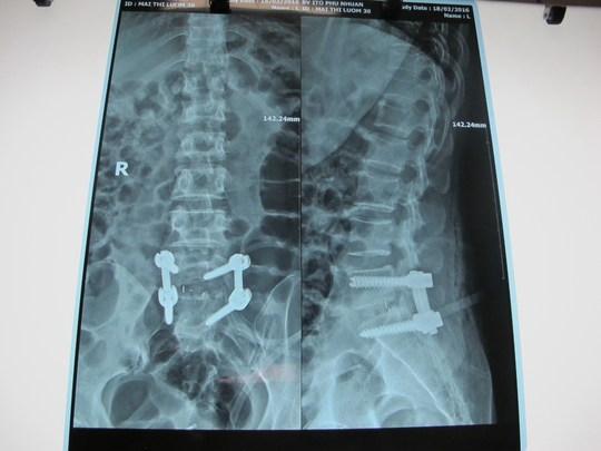 Cột sống bệnh nhân đã được phẫu thuật, bắt vít