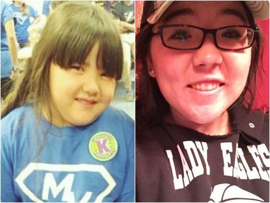 Emma Buckner, 6 tuổi (trái) và Kaitlin Buckner, 18 tuổi (phải). Ảnh: ABC 15