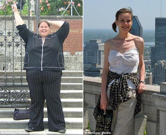 Lisa lúc nặng nhất, 187 kg (ảnh trái) và trong giai đoạn biếng ăn, cân nặng thấp nhất của cô chỉ là 49 kg (cỡ 6).