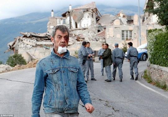 Một nạn nhân bị thương. Ảnh: Reuters
