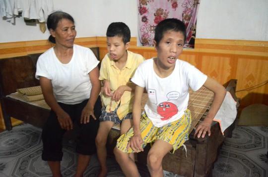 Hai đứa con tật nguyền, dị dạng do nhiễm chất độc da cam/dioxin của vợ chồng ông Hoàng Công Uẩn ở huyện Vụ Bản, tỉnh Nam Định. Ảnh: Nguyễn Hưởng
