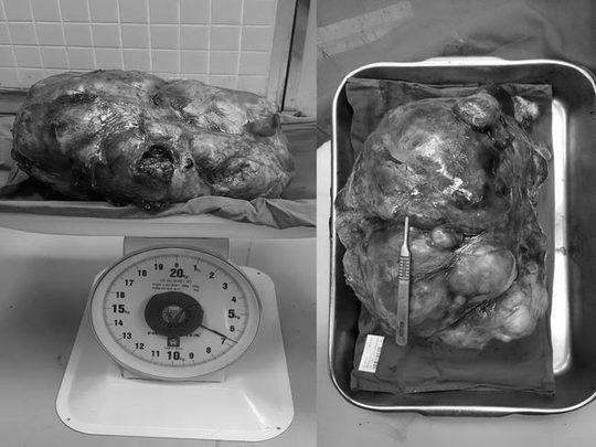Và trọng khối u của ông L. vừa được các bác sĩ bóc ra.