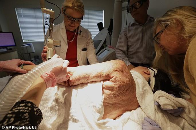 """""""Em bé Napalm"""" Kim Phúc bắt đầu điều trị laser miễn phí"""