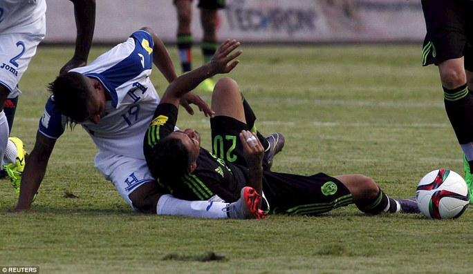 Luis Garrido gãy gập chân sau cú đè của đối thủ