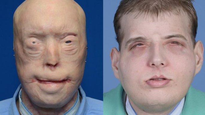 Patrick Hardisontrước và sau khi ghép mặt. Ảnh: BBC