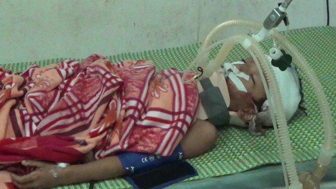 Sau khi bị bác đánh, cháu Nguyễn Ngọc Chiến bị chấn thương sọ não, đang nằm điều trị tại BV Sản nhi Nghệ An - Ảnh: Đô Lương