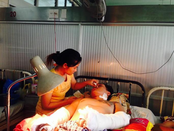 Bàn tay của nạn nhân được các bác sĩ nối lại và đang được sưởi đèn