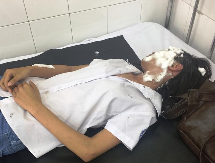 Nạn nhân Vũ Thị Hà đang điều trị tại Bệnh viện Đa khoa khu vực Thủ Đức.