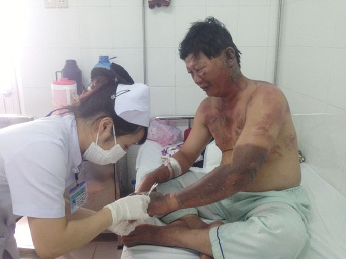 Anh Mai Xuân Long đang được nhân viên y tế chăm sóc vết bỏng do cháy xăng