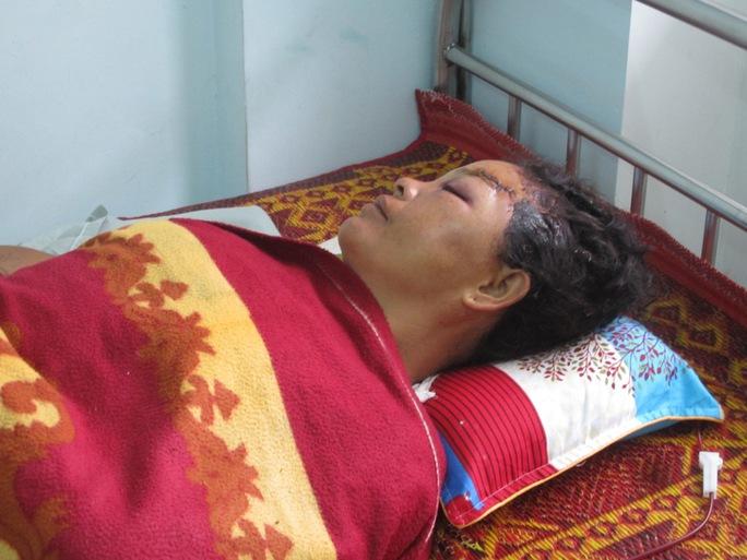 Bà Giang đang điều trị tại bệnh viện với nhiều thương tích trên cơ thể