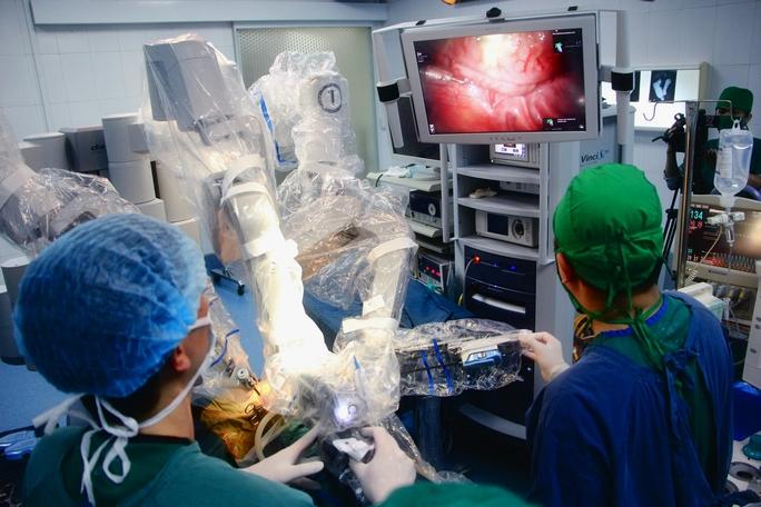 Các bác sĩ BV Nhi Trung ương đang tiến hành mổ nội soi robot ở trẻ em