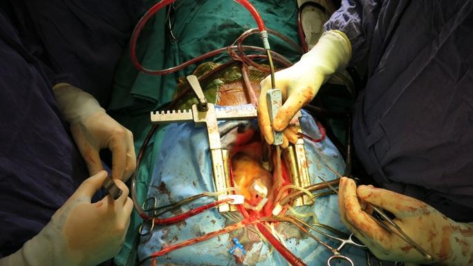 Quả tim mới nằm trong lồng ngực bệnh nhân đã đập những nhịp mới hòa hợp với cơ thể người nhận