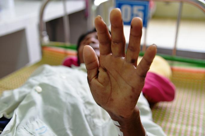 Bệnh nhân Đinh Văn Nguyên với bàn tay bị thâm tím. Ảnh: Tử Trực
