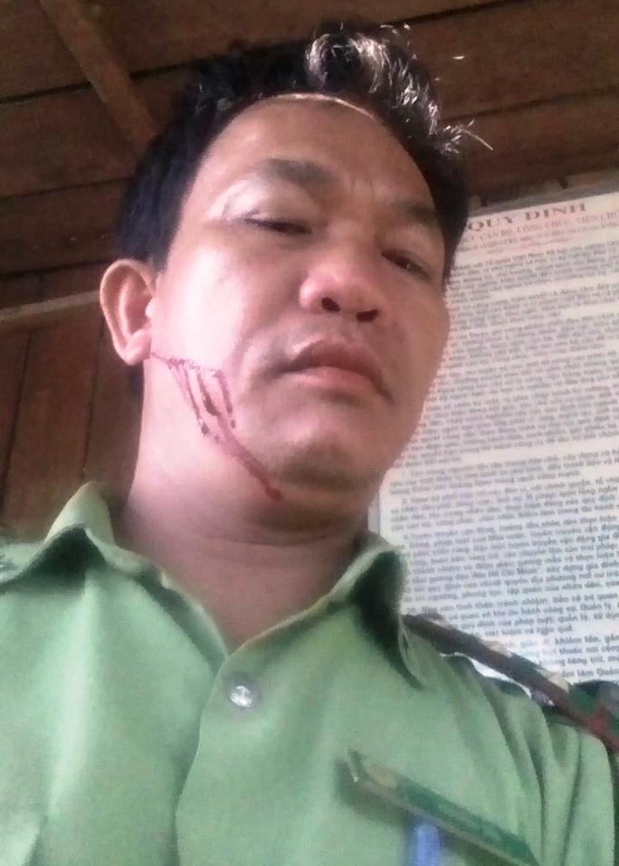 Kiểm lâm viên Nguyễn Thà bị aalm tặc chém Ảnh: CTV