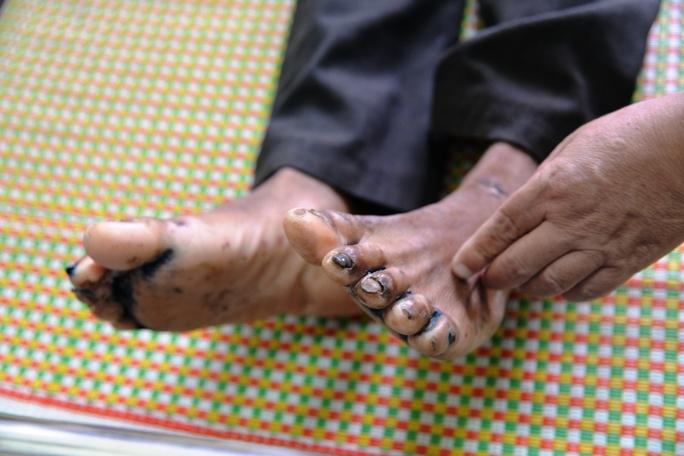 Bàn chân của bệnh nhân Đinh Văn Nguyên cũng bị nổi mẫn đỏ, thâm tím. Ảnh: Tử Trực