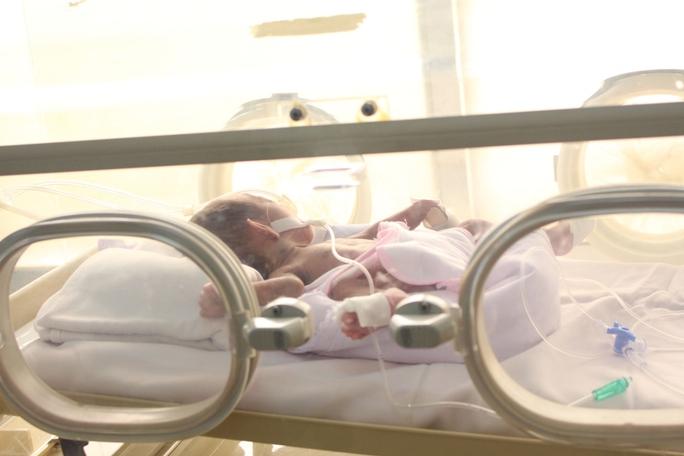 Bé sơ sinh Campuchia được điều trị tại Bệnh viện Đa khoa tỉnh Gia Lai