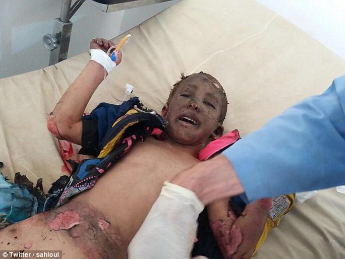 Em bé napalm ở Syria. Ảnh: Twitter