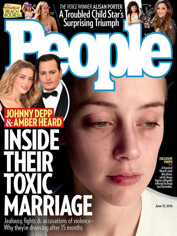 Amber tố rằng đây là vết thương do bị Johnny Depp bạo hành