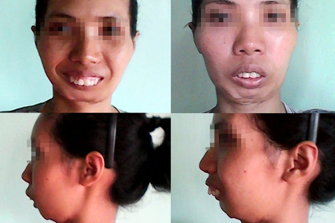 Gương mặt mới của cô sơn nữ sau ghép hàm