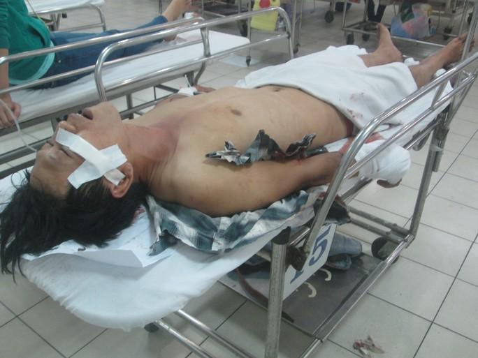 Nam thanh niên Lê Thái Bình nằm hôn mê ở bệnh viện đang chờ vào phòng phẫu thuật.