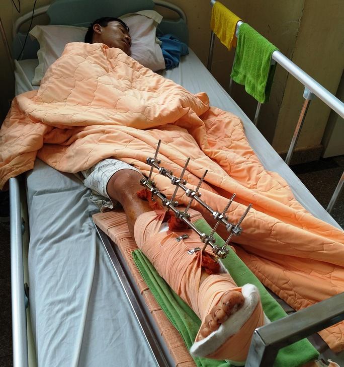 Anh Lợi đang được điều trị tại bệnh viện