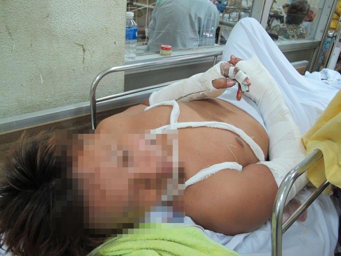 Cổ Chí Linh bị chém ở chân và bàn tay khá nặng