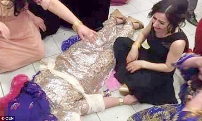 Cô gái bị bắn vào đầu khi đang tham dự một lễ cưới. Ảnh: CEN