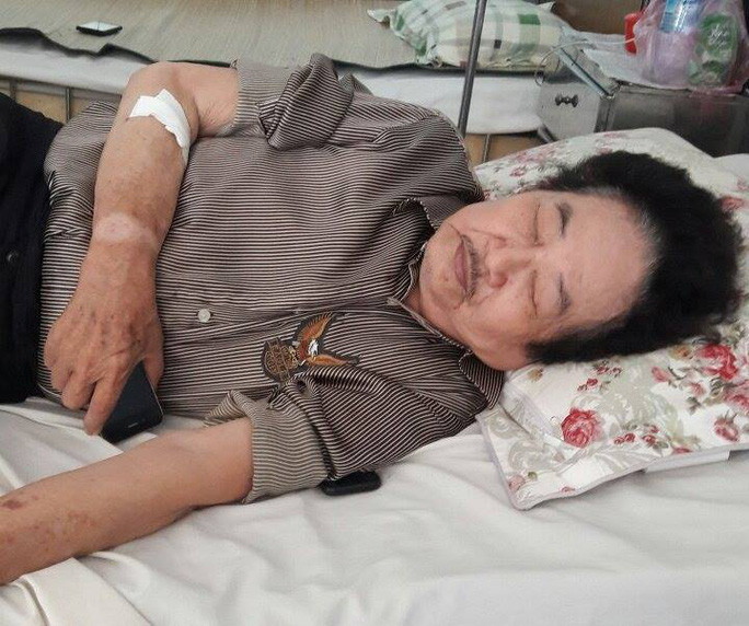 Nghệ sĩ Tòng Sơn đang điều trị bệnh tim tại BV Quân Y 7A