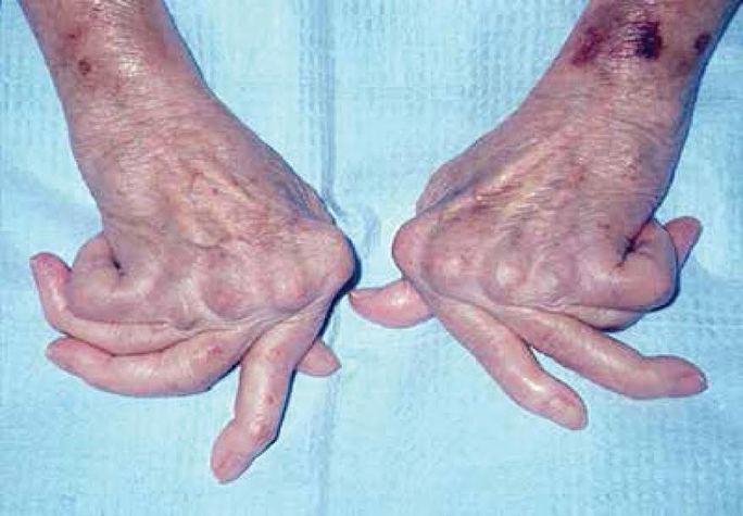 Bàn tay bị biến chứng do viêm khớp dạng thấp.