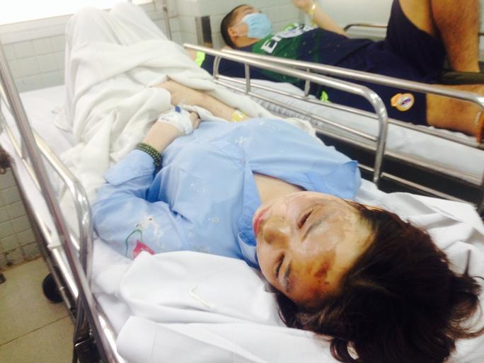 Một trong 2 nữ sinh viên bị bỏng toàn khuôn mặt