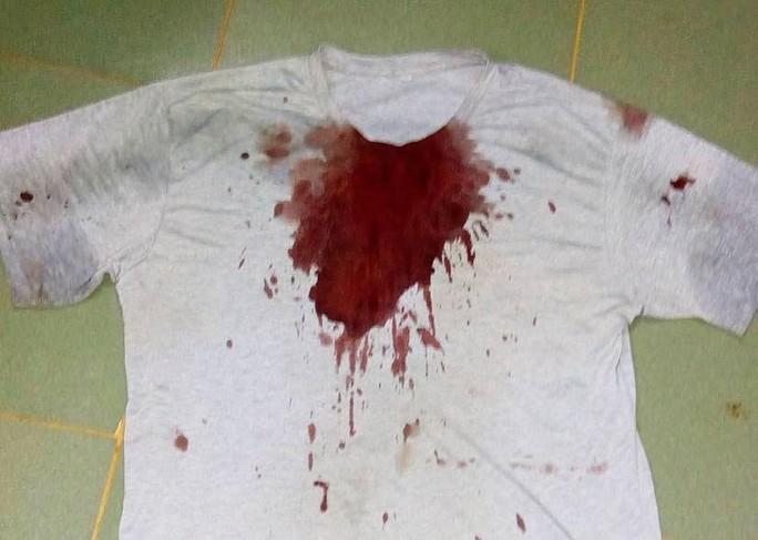 Chiếc áo của nạn nhân ướt đẫm máu