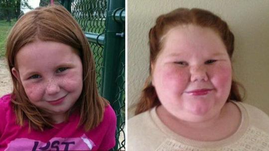 Cô bé Shapiro chỉ mới 12 tuổi nhưng đã nặng tới…86 kg