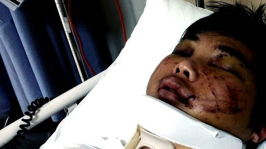 Gang attack victim Minh Duong in hospital.