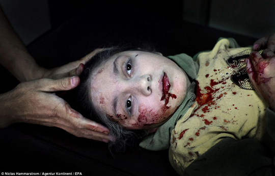 Haunting: Dania Kilsi, 11, lies covered in her own blood as she is treated for shrapnel wounds in Dar al-Shifa hospital in Aleppo, Syria, on October 15, 2012. She and her two siblings, Zaid, two, and Fatima, six, were rushed to the clinic after they were hurt by shrapnel from a nearby explosion as they were playing outside their home