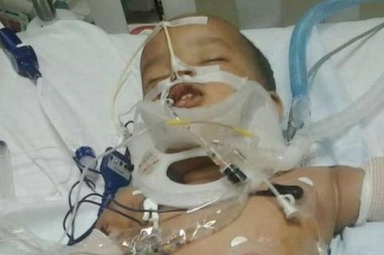 Cậu bé Musa Dayib đang điều trị tại bệnh viện. Ảnh: ABC