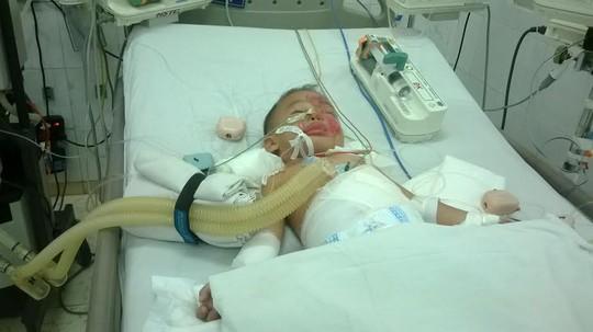 Bé Thiên Hòa đang được điều trị tại Bệnh viện nhi đồng Đồng Nai