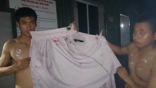 2 nạn nhân cho xem cái áo dính axit bị cháy