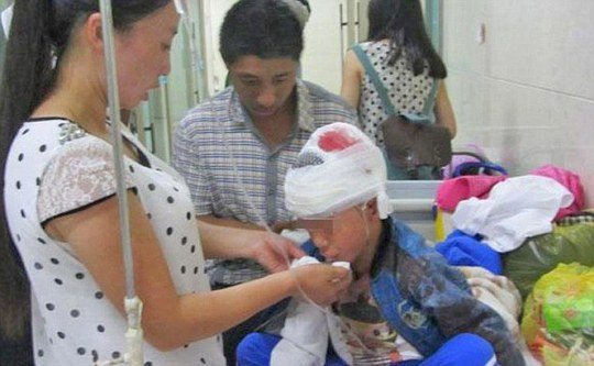 Một trong số 4 em bị xác định chấn thương sọ não.