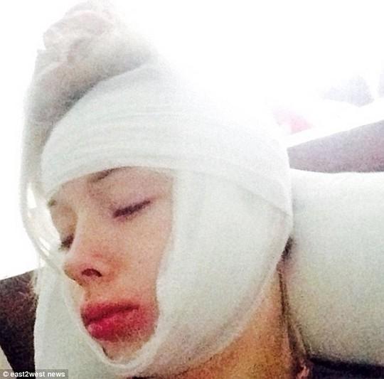 Valeria Lukyanova tuyên bố bị người lạ tấn công