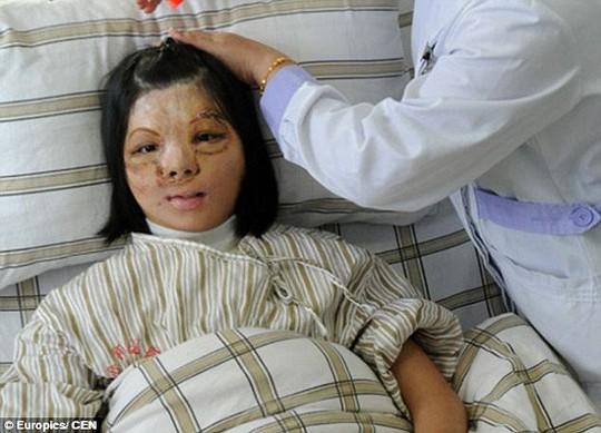 Xu Jianmei tìm thấy nụ cười sau ca phẫu thuật