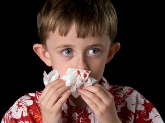 Trẻ bị chảy máu cam có sao không là thắc mắc của nhiều người
