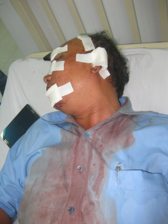 Đang nhậu, ông Nguyễn Văn Tuyến bị sếp cũ đánh đến nhập viện