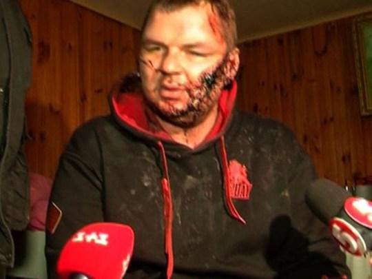 Một người biểu tình Ukraine bị thương. Ảnh: japantime.co.jp