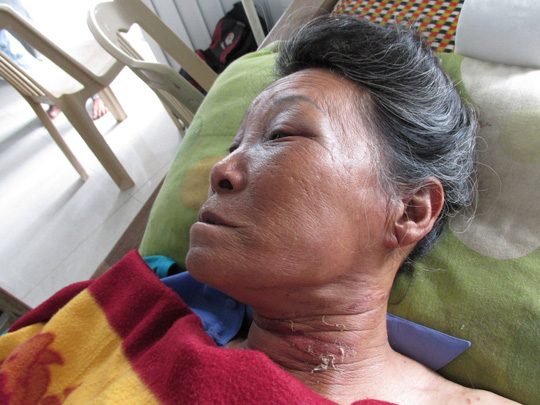 Vết sướt trên cổ bà Xuân nghi do bị dùng dây siết