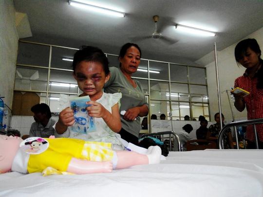 đã 3 ngày điều trị nhưng mắt bé Đỗ Thị Kim Ngân vẫn còn tím tái. Phía sau là bà ngoại cháu
