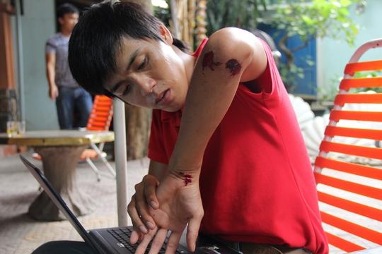 CTV Trần Mai của Báo Tuổi trẻ với vết tích bị tấn công