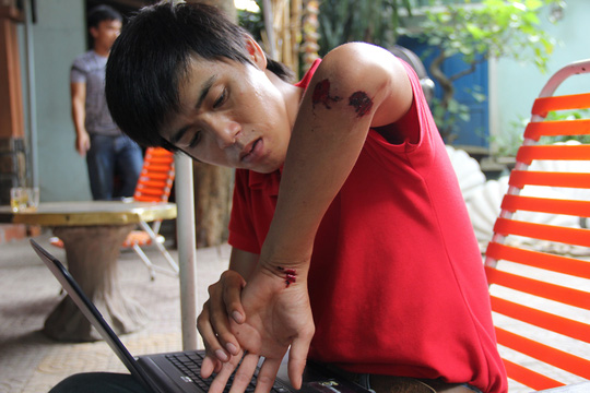 Cộng tác viên Lê Ninh (Báo Tuổi Trẻ) bị đối tượng hành hung gây thương tích