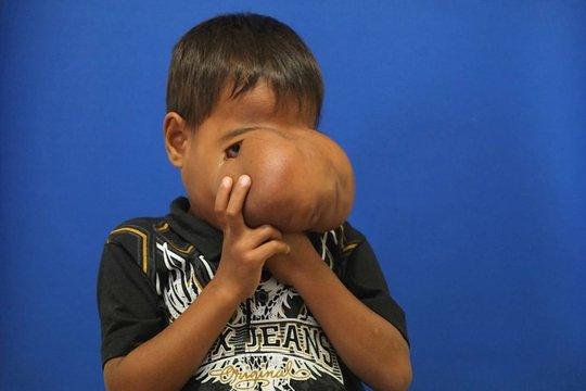 Cậu bé Jhonny Lameon trước khi được phẫu thuật