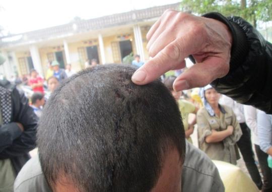 Một người trong thôn bị đánh toác đầu, còn nguyên nhân vì sao thì đến nay vẫn chưa được làm rõ.